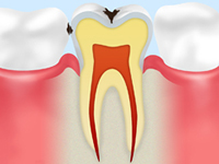 C1[エナメル質の虫歯]