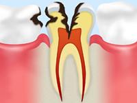 C3[神経に達した虫歯]