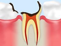 C4[歯根に達した虫歯]