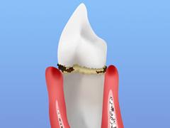 STEP1 歯肉炎