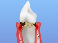STEP2 軽度歯周炎