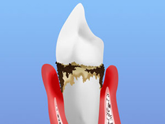 STEP3 中等度歯周炎