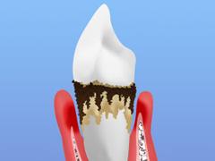 STEP4 重度歯周炎