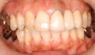 CASE.04<br />セラミック審美歯科治療・ホワイトニング(30代女性)