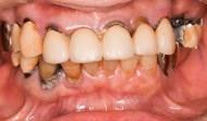 CASE.10<br />総合歯科治療(70代女性)