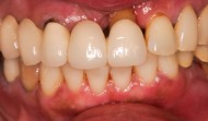 CASE.11<br />総合歯科治療(70代女性)