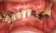 CASE.12<br />総合歯科治療(30代男性)