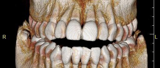 歯科用CTはすごいのです!