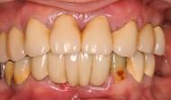 CASE.16<br />総合歯科治療(70代女性)