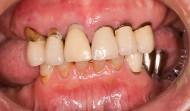 CASE.18<br />総合歯科治療(60代男性)
