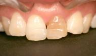 CASE.19<br />歯の漂白(50代女性)