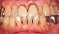 CASE.21<br />歯周病治療・インプラント治療(50代女性)
