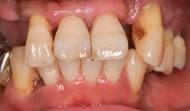 CASE.22<br />インプラント・入れ歯治療(50代男性)