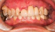CASE.25<br />口臭がひどい・歯茎が腫れて痛む(40代男性)