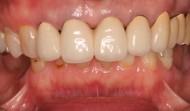 CASE.26<br />入れ歯を支えている歯がどんどん抜けていく(60代女性)