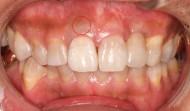 CASE.30<br />前歯1本のセラミッククラウン症例