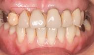CASE.31<br />前歯インプラントブリッジ症例