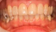 CASE.32<br />セラミックラミネートべニア症例