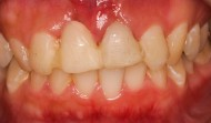 CASE.37<br />前歯インプラント症例