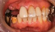 CASE.38<br />部分入れ歯症例