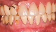 CASE.39<br />部分入れ歯から全顎インプラントへの症例