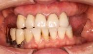 CASE.40<br />上顎マグネットからインプラントへの症例