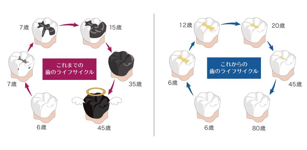歯のライフサイクル