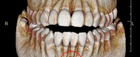 なかなか治らない歯の痛み