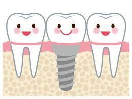 歯が割れた・・・抜歯した穴に即時インプラント