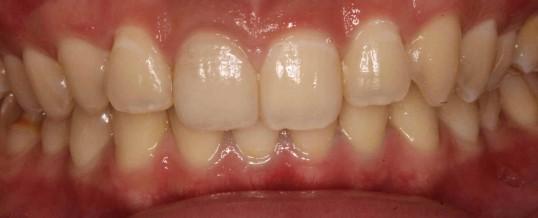 どの歯が被せ物か、お分かりですか?